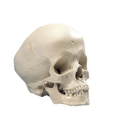 Cráneo Hidrocefálico 3B scientific - A29/2