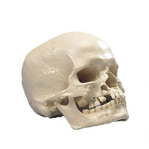 Cráneo Microcefálico 3B scientific A29/1