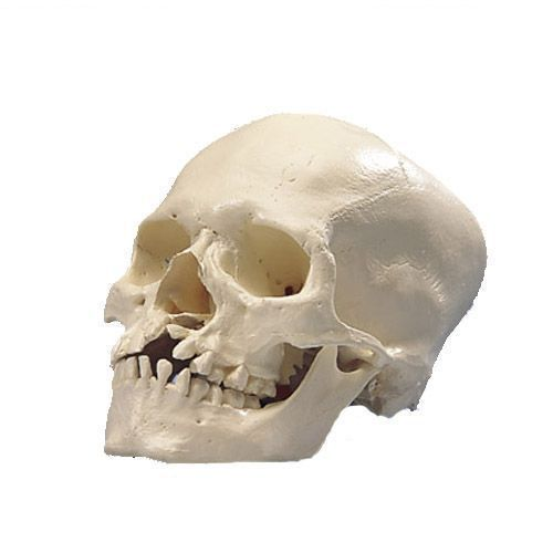 Cráneo con Paladar y Maxilar Hendido 3B - A29/3