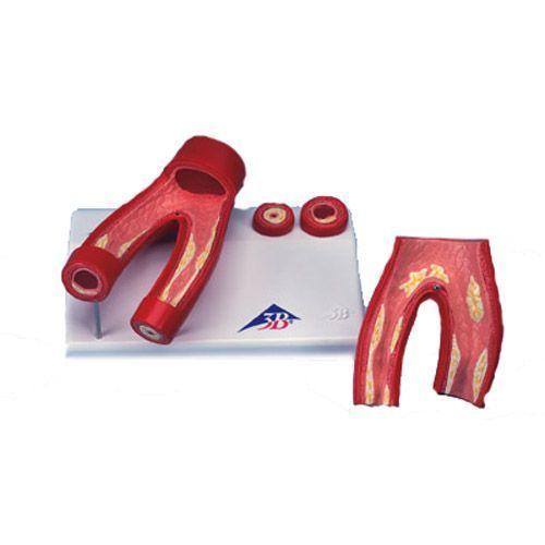 Modelo de arteriosclerosis con sección transversal de la arteria, de 2 piezas 3B - G40