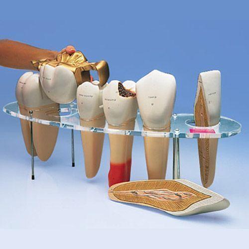Modelo de prótesis dental, 7 piezas, 10 veces su tamaño natural - francés 3B - W42529