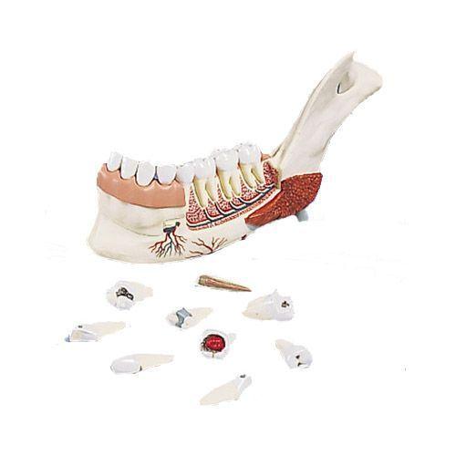 Mitad de la mandíbula inferior con 8 dientes cariados, 19 piezas 3B - VE290