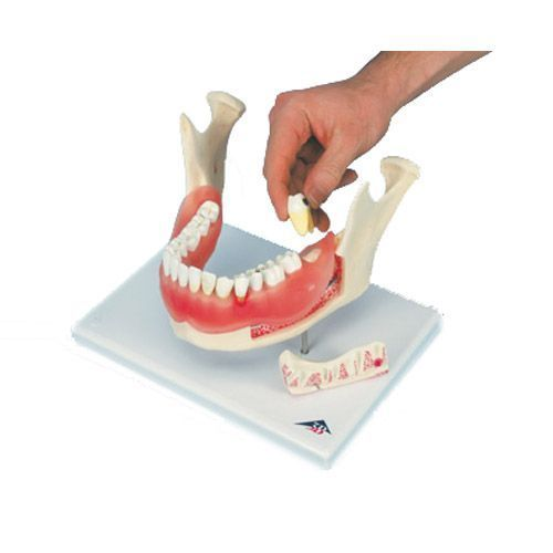 Afección dental, a 2 aumentos, de 21 piezas 3B scientific D26