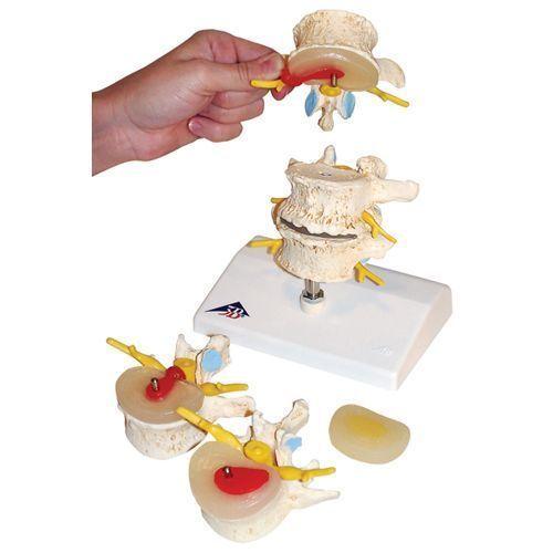 Estadios del prolapso del cartílago interventeral y de la degeneración vertebral 3B scientific - A795