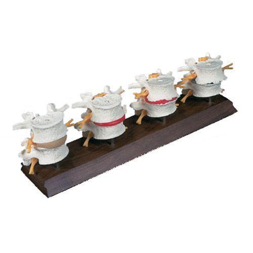 Modelo de la degeneración de las vertebras lumbares 3B scientific -W47500