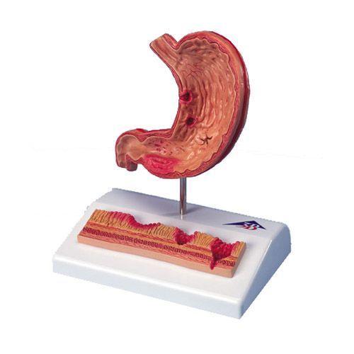 Estómago con úlceras gástricas 3B scientific K17