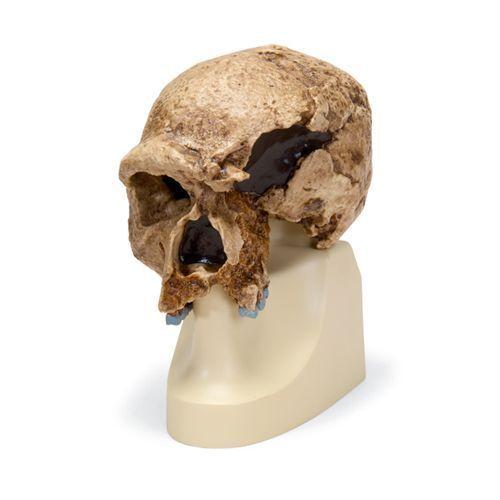 Cráneo antropológico – Steinheim VP753/1 3B scientific