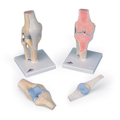 Modelo de la articulación de la rodilla, dividido en 3 partes 3B - A89