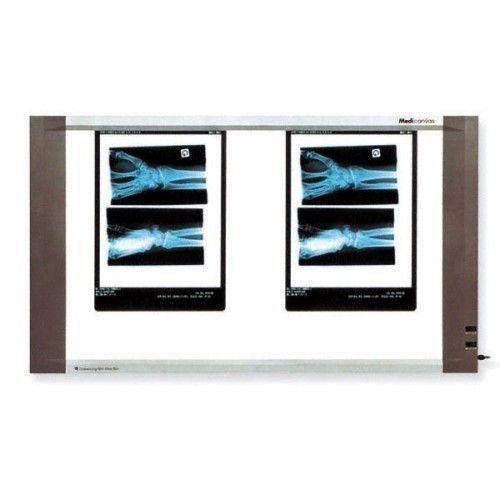 Negatoscopio extraplano 2 pantallas 45W Holtex