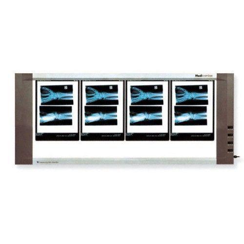Negatoscopio extraplano 4 pantallas 90W Holtex