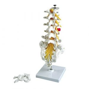 Columna vertebral lumbar con hernia discal dorsolateral 3B scientific A76/5