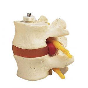 Discos lumbares con hernia discal. Montados flexibles sobre soporte 3B scientific A76/9