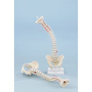 Modelo de columna vertebral con hernia discal, pelvis desmontable sin soporte 4024 Erler Zimmer