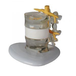 Modelo de simulación de hernia discal 4400 Erler Zimmer
