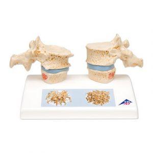Modelo de osteoporosis A95