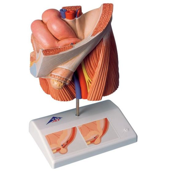 Modelo de hernia inguinal 3B scientific H13